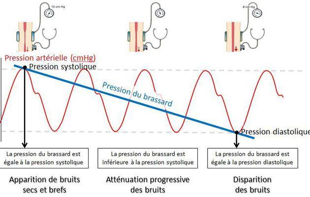 Mesurer la pression artérielle avec un sphygmomanomètre