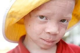Albinos people in Africa : born to be protected !
