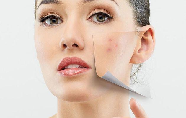 4 remèdes simple pour se débarrasser de l'acné sur votre peau