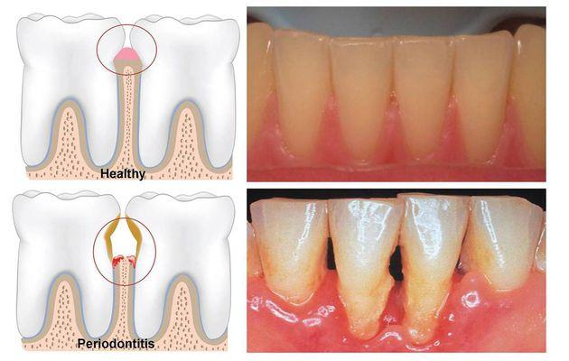 Avez-vous parodontite? Aider à vous immédiatement! Voici le traitement!