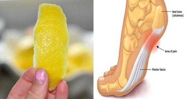 1 zeste de citron astuce pour se débarrasser de l'inflammation et de la douleur chronique