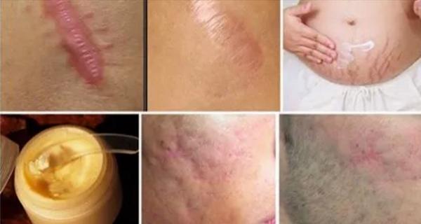 Éliminer les cicatrices de toute partie de votre corps en moins d'un mois