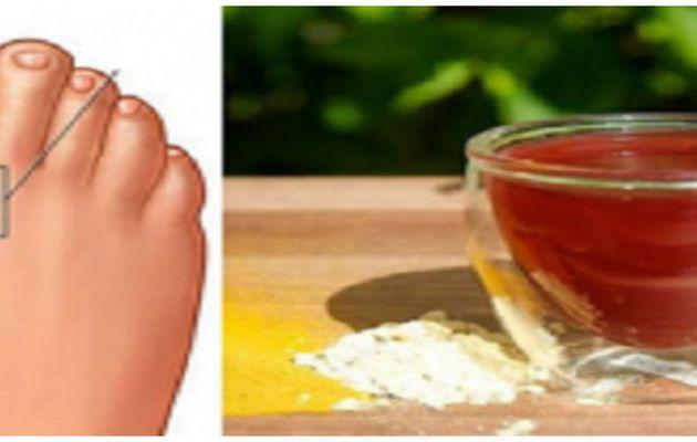 La meilleure et la plus rapide pour supprimer des cristaux acide urique et Arrêter les douleurs articulaires et Gout