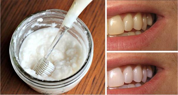 Les dents sont blanches dans 2 min avec ce remède à la maison !