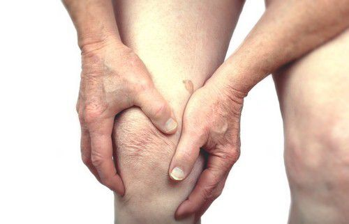 Natural Treatment for Arthritis- a Bird's Eye View