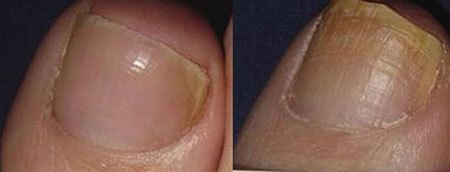 What Do You Know About Toenail Fungus