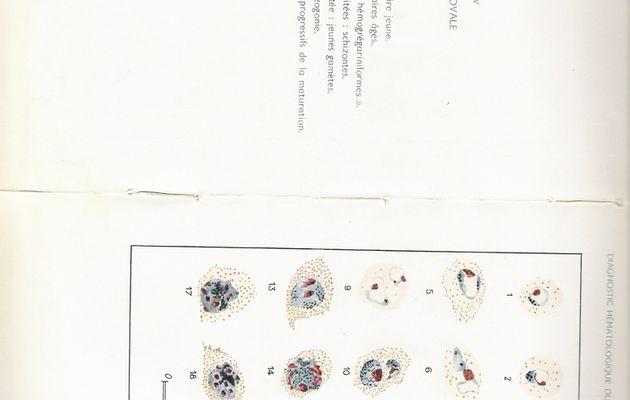 Plasmodium ovale (aspect sur frottis après coloration MGG)