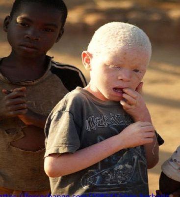 Une pétition contre  la violence et les massacres des enfants albinos au Malawi.