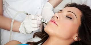 Basics of Laser Treatments for Acne