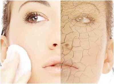 Les remèdes maison pour la peau sèche: