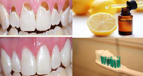 Prévenir la carie dentaire, Protégez votre émail, et  faire vos dents blanches et fort avec un seul ingrédient