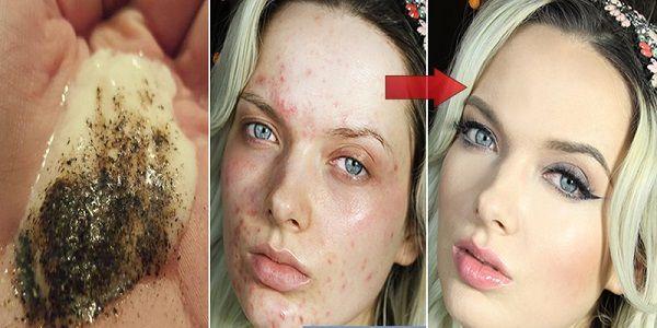 Mélanger ces 2 ingrédients et voir ce qui arrive à votre peau après plusieurs minutes