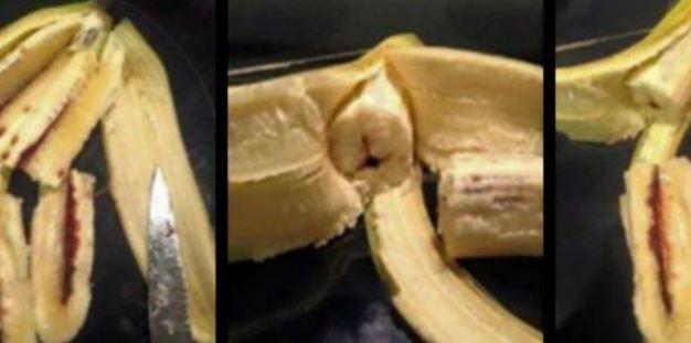 Attention : Cette fille a failli perdre la vie à cause d'une banane