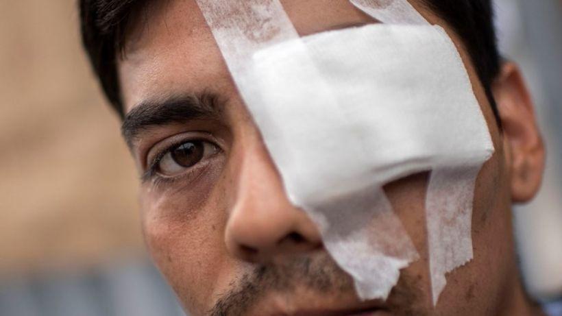 Un manifestant a perdu un œil après un coup de feu tiré par la police (Photo: T13)