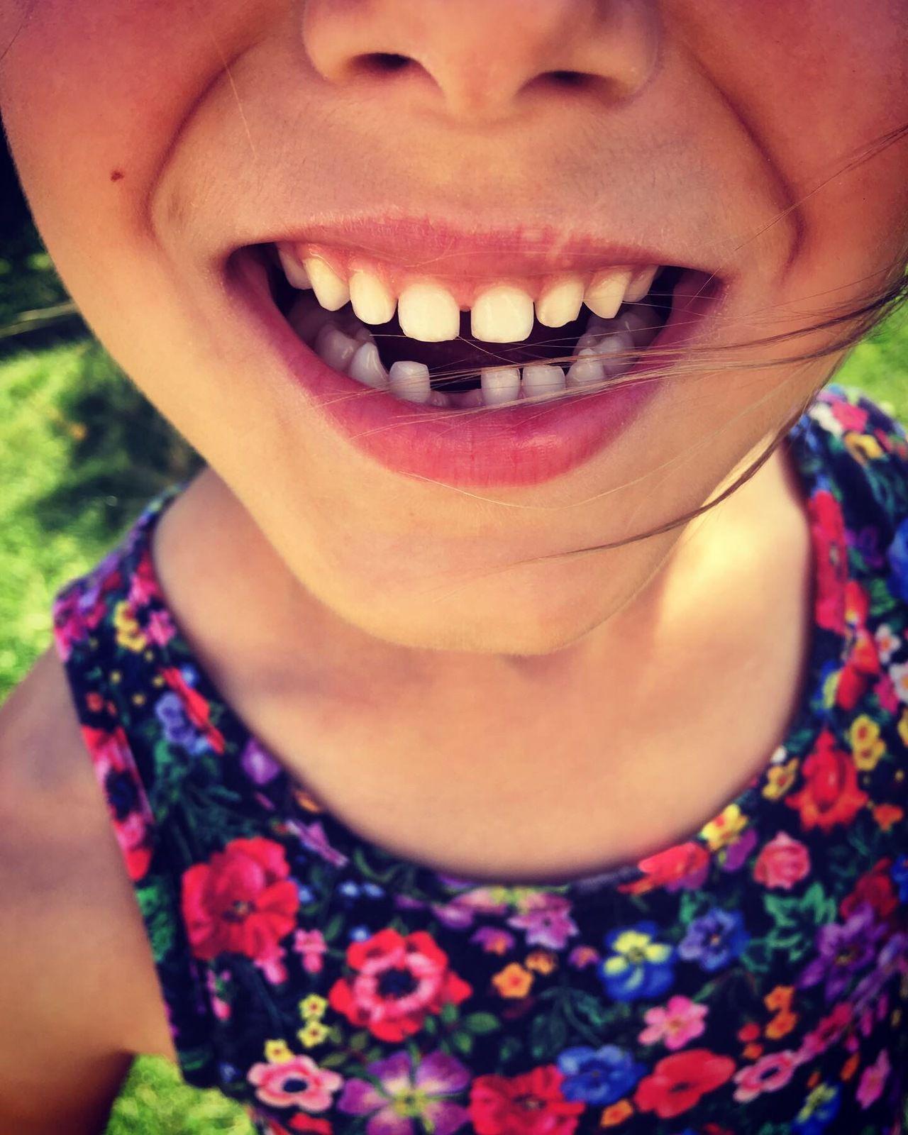 Une dent de tombée