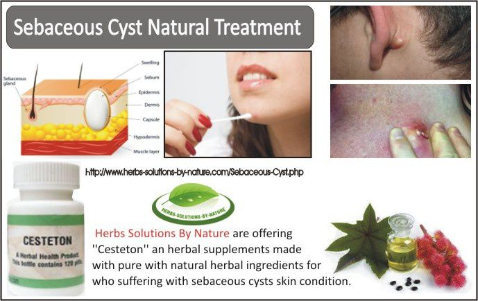 Sebaceous Cyst Natural Treatment - Herbs Solutions by Nature
