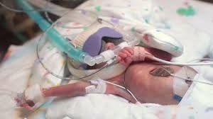 Se sont les enfants qui sont nés avant neuf mois qu'on appelle prématurés.