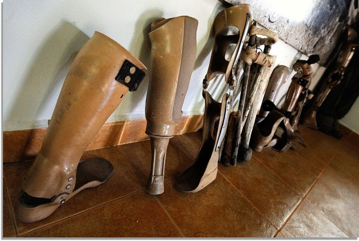 Prothèses de Mutilés par les Mines, des plus modernes aux plus archaïques.