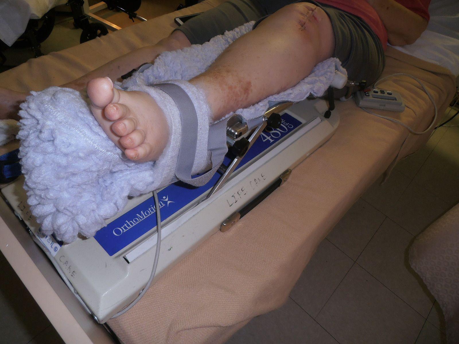 Sharon a dû subir une opération du genou et bien sûr la rééducation qui s'en suit. Elle a bénéficié d'un nouvel appareil qu'elle réglait comme elle voulait avec la télécommandé. Celui-ci lui fait plier la jambe en permanence en tenant compte des angles programmés. Important pour elle qui veut reprendre ses activités de danseuse au plus vite. Bonne récupération l'amie !