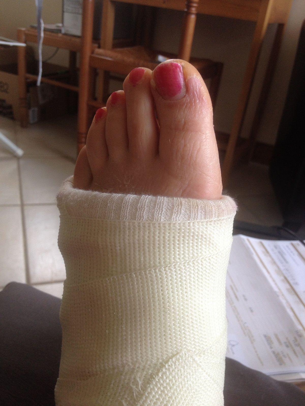 Comment rester sexy même plâtrée ! jambe cassée