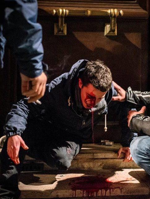 Bordeaux, janvier 2019 : Benjamin, 23 ans, a perdu un œil après un tir de flashball en pleine tête par la police républicaine