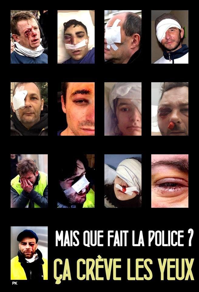 GILETS JAUNES, ACTE X : ENCORE DE SANGLANTES VIOLENCES RÉPUBLICAINES CONTRE LES JEUNES FRANÇAIS !