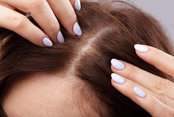 Tips on How To Hide and Avoid Thinning Hair