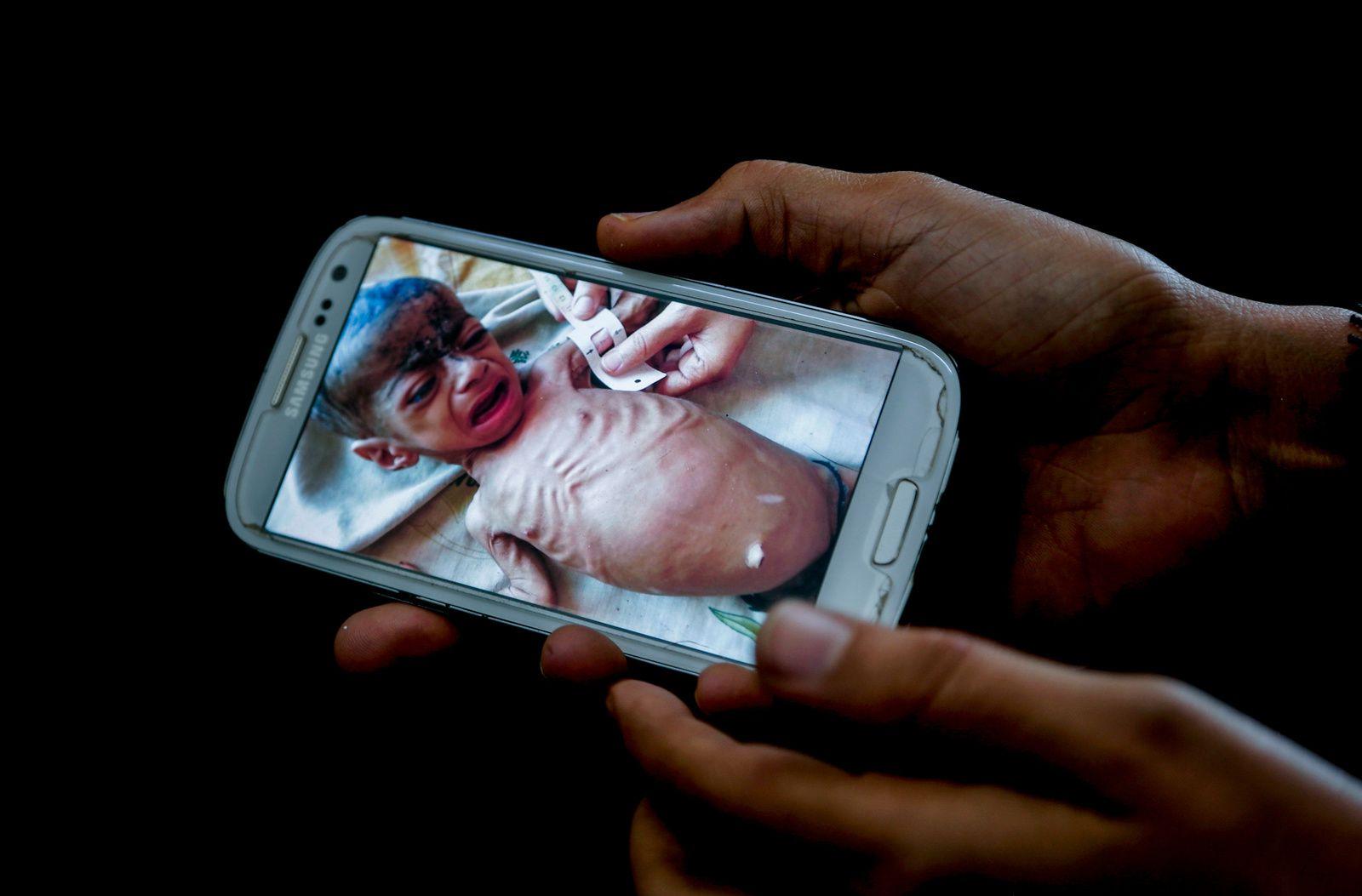 Yemen famine (c) Nariman El-Mofty / AP