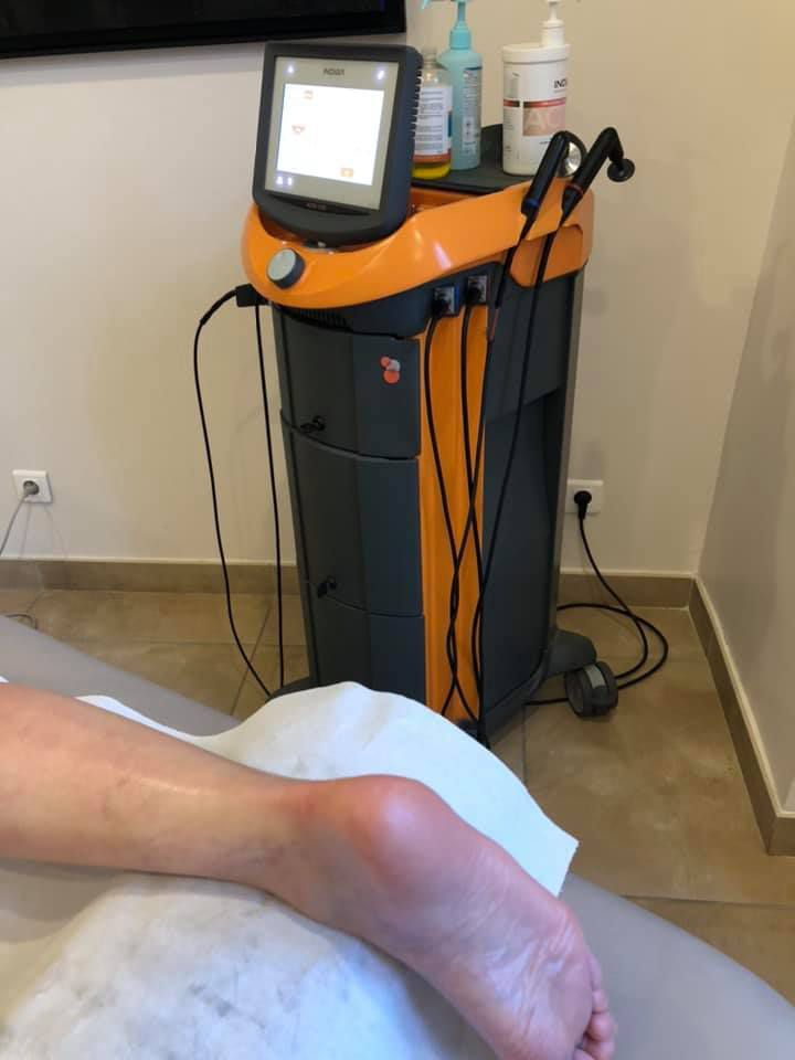 Utilisation de la technologie INDIBA dans la prise en charge d'une lésion traumatique de la cheville