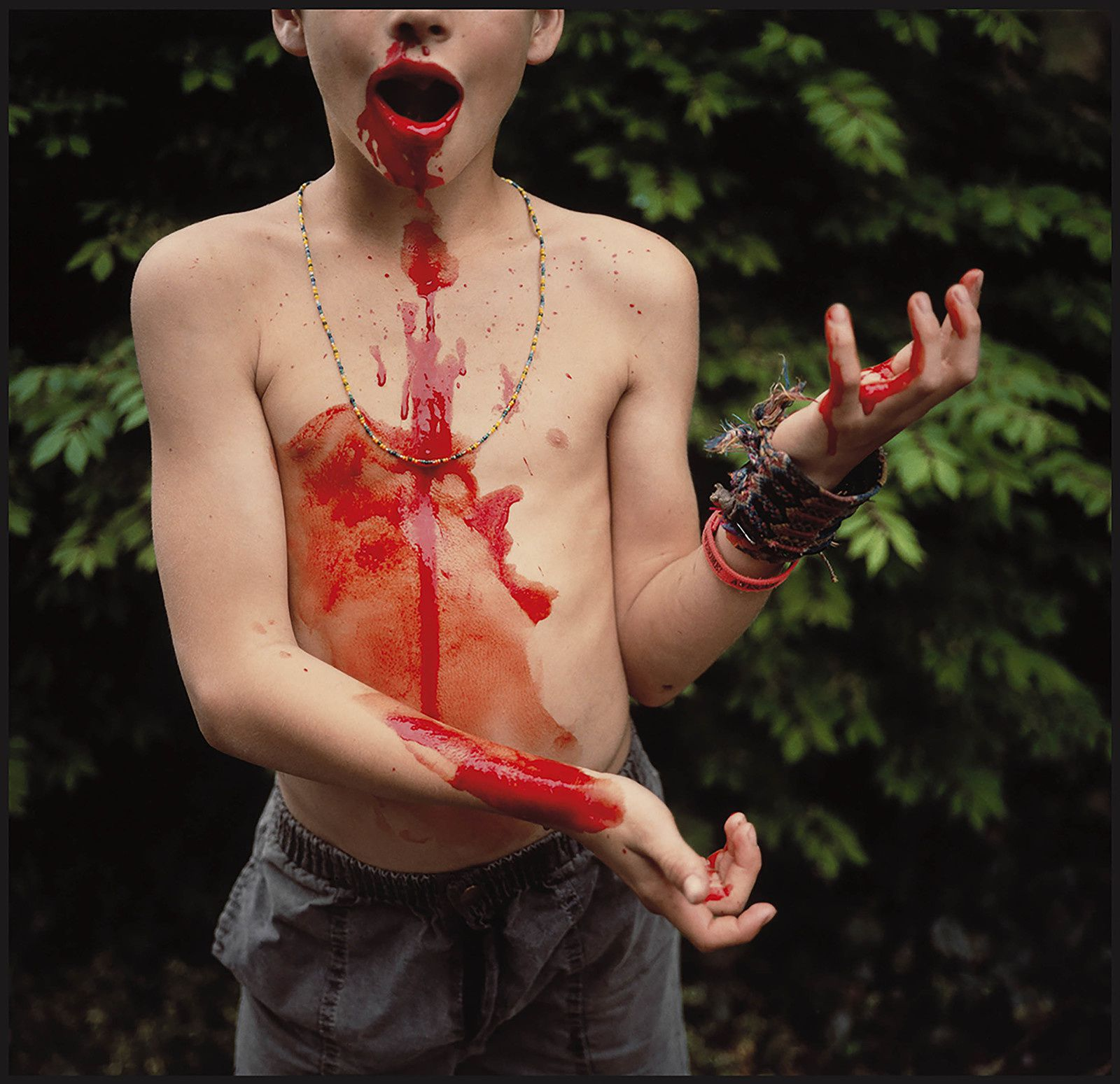 """Bloody Nose"", 1991 de  Sally MANN. Private collection. © Sally Mann"