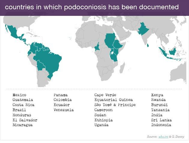 Countries where podoconiosis is documented - doc podo.org