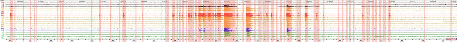 Piton de La Fournaise - seismic cries on 02.04.2020 - (© OVPF-IPGP). - one click to enlarge.