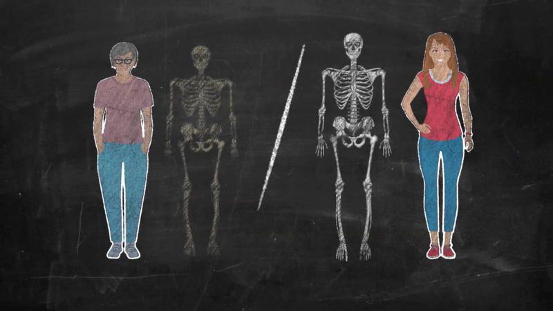 Ce mercredi sur France 5, enquête sur l'ostéoporose et ses zones d'ombre.