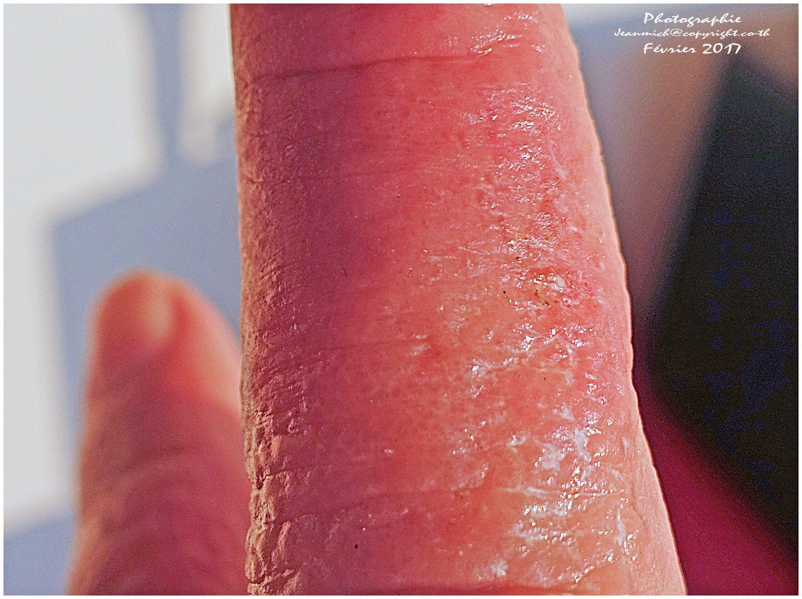 Les allergies dues aux engrais (Thaïlande)