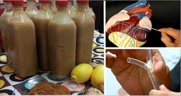 Nettoyer vos artères de toutes les toxines et les graisses pouvant nuire à votre santé.