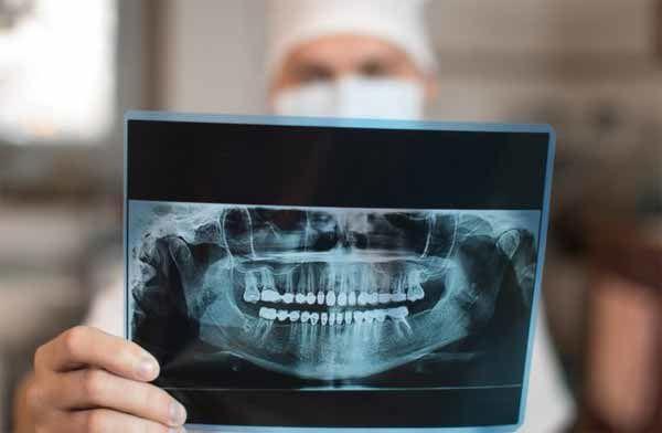 Un dentiste suédois a été licencié pour avoir révélé que 80% des enfants migrants sont en fait des adultes