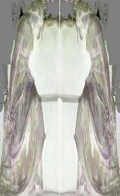 155 Orphée, Narcisse et l'ange