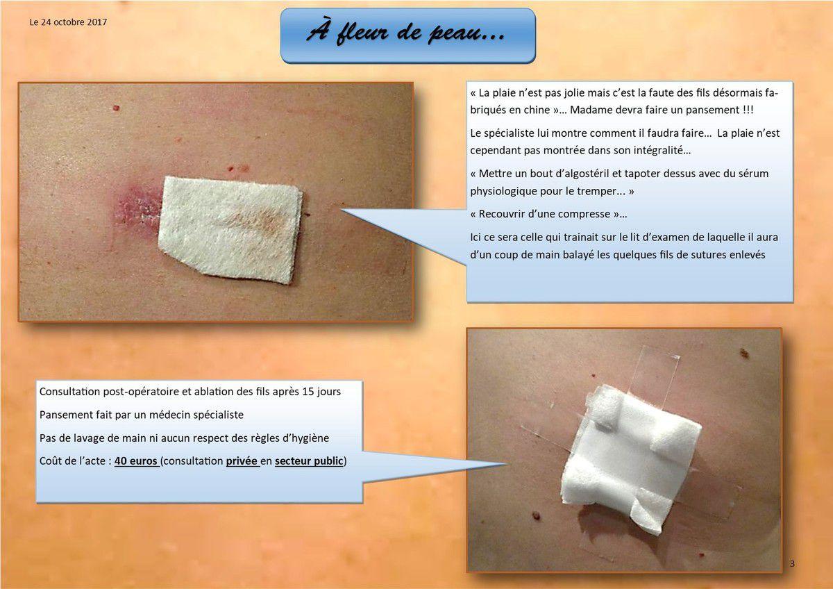 24 octobre 2017 Ablation des 16 points de suture