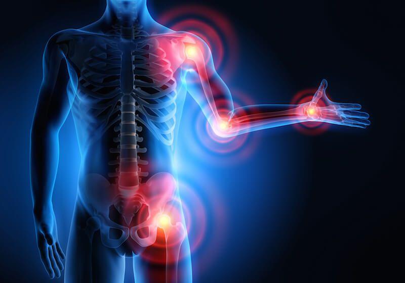 Polyarthrite rhumatoïde: la flore intestinale mise en cause