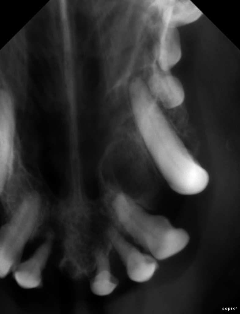 radiographie de la zone = noter la présence du kyste