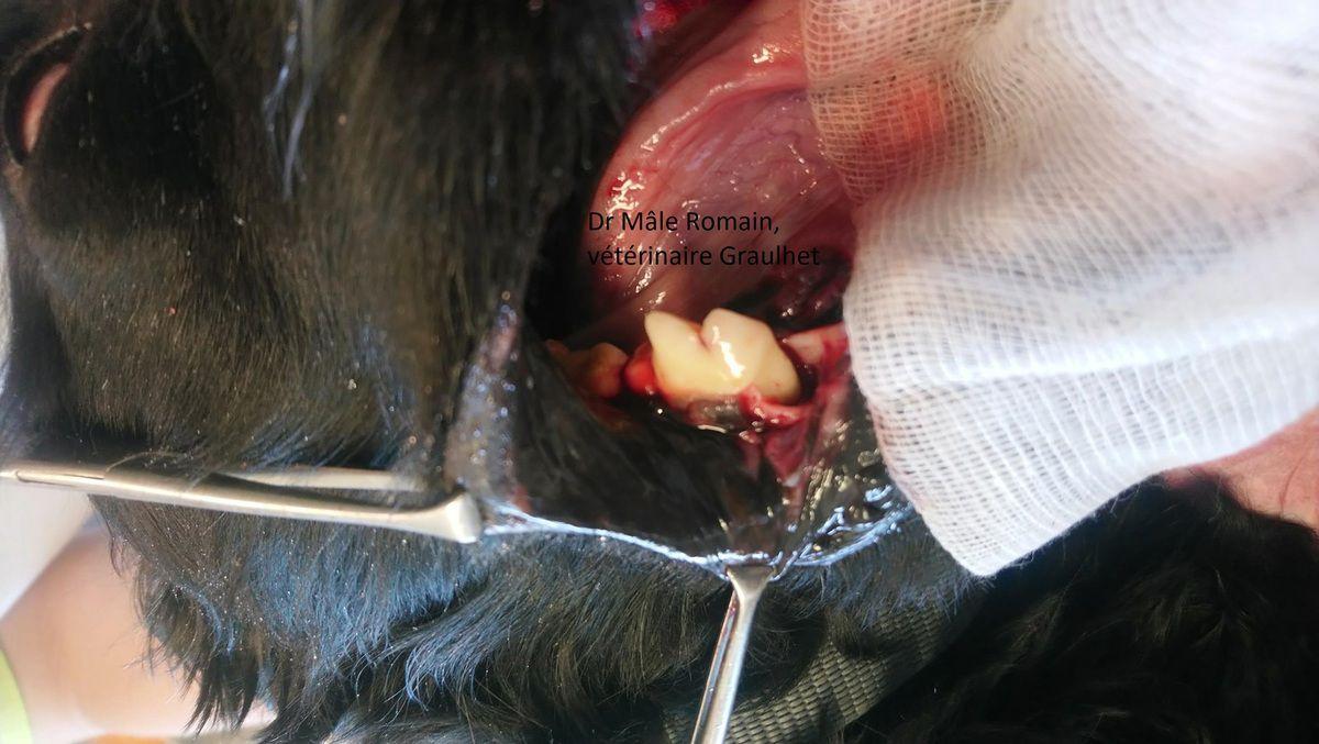 image per opératoire post détartrage de la racine rostrale de la dent 409