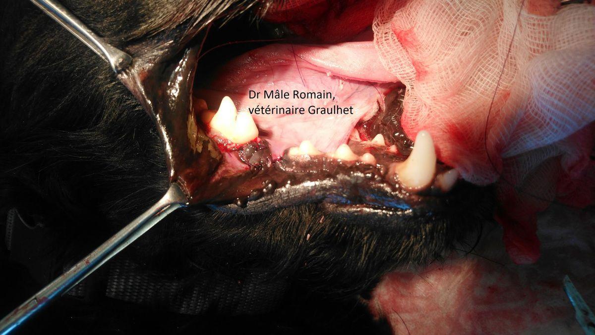 Image per opératoire après la suture du lambeau gingival