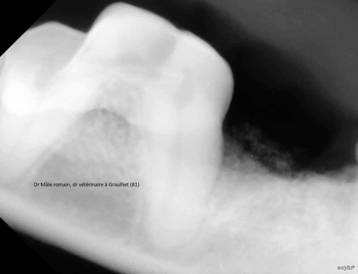 radiographie de contrôle à j+60jours
