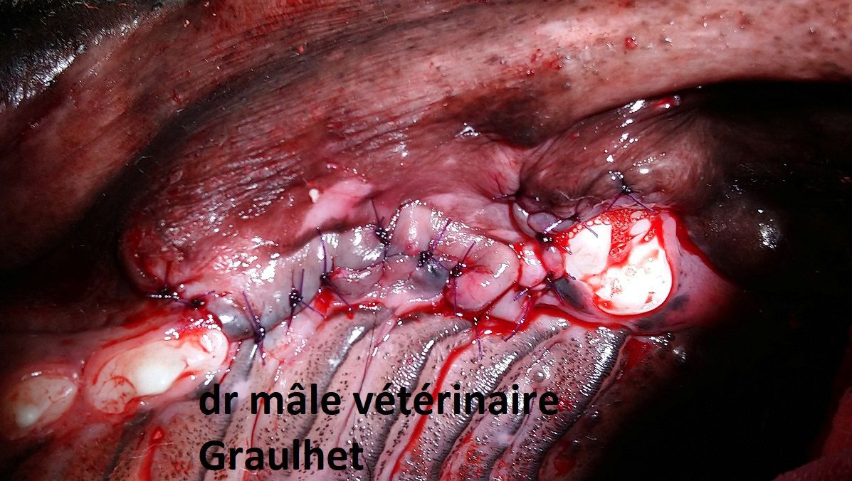 vue post opératoire après fermeture du lambeau gingival