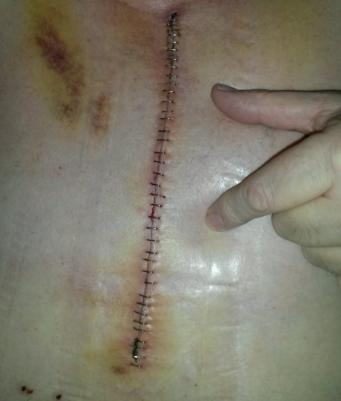 Cicatrice après pontage coronarien: 36 agrafes