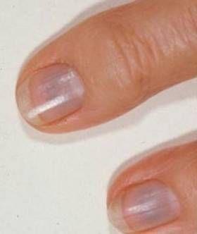 ongles bleuatre