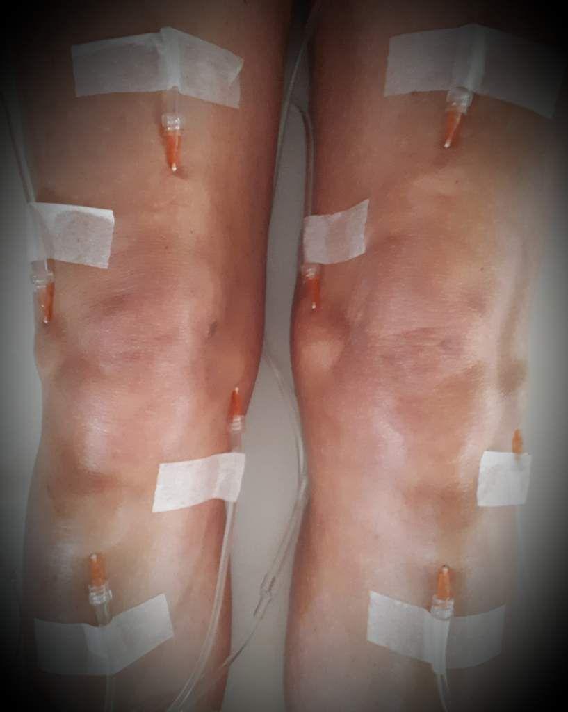hydrotomie percutanée