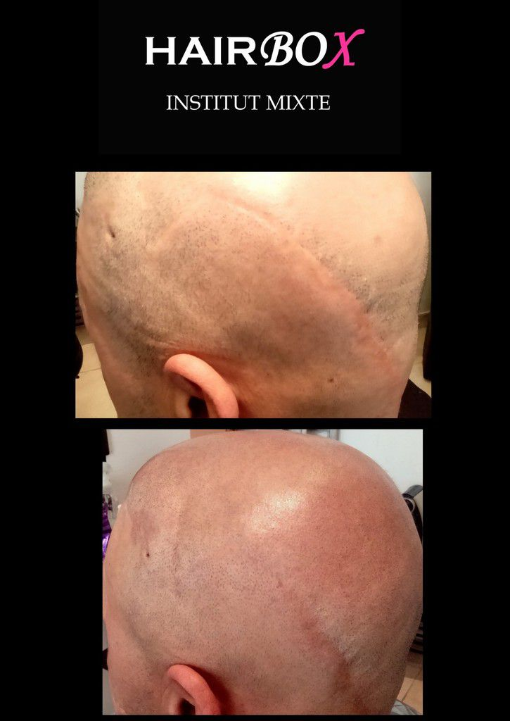 micropigmentation capillaire hairbox
