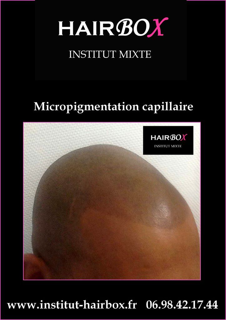 Micropigmentation capillaire / Tricopigmentation