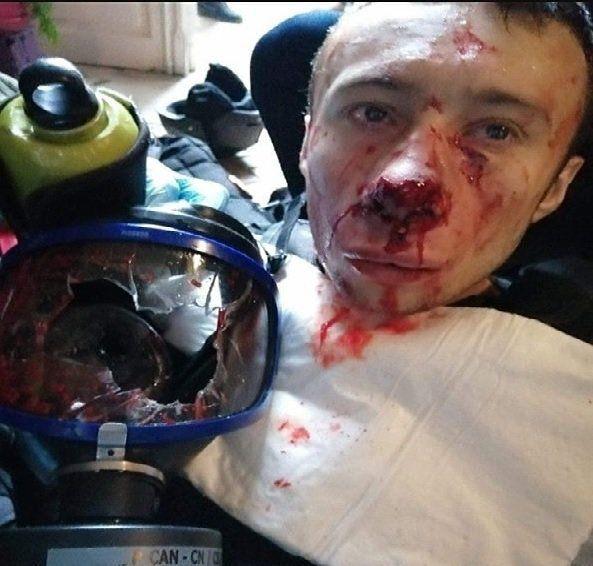 Pour l'anniversaire des Gilets Jaunes, un journaliste reçoit une grenade en plein visage